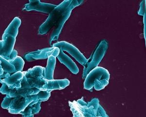 tuberculoza