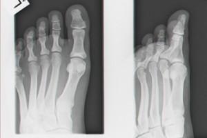 radiografie laba picior