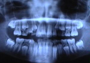 Radiografiile dentare provoaca tumori pe creier
