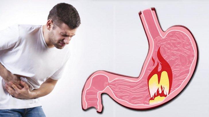 Regimul alimentar în cazul gastritei